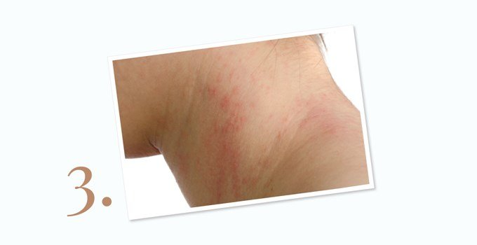 How is the atopic dermatitis?