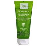 acniover purify  gel limpeza purificante pele oleosa e acneica 200ml
